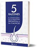 Ebook Injerto Capilar